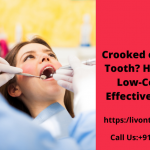 Crooked or Missing Tooth? Here is the Low-Cost and Effective Solution