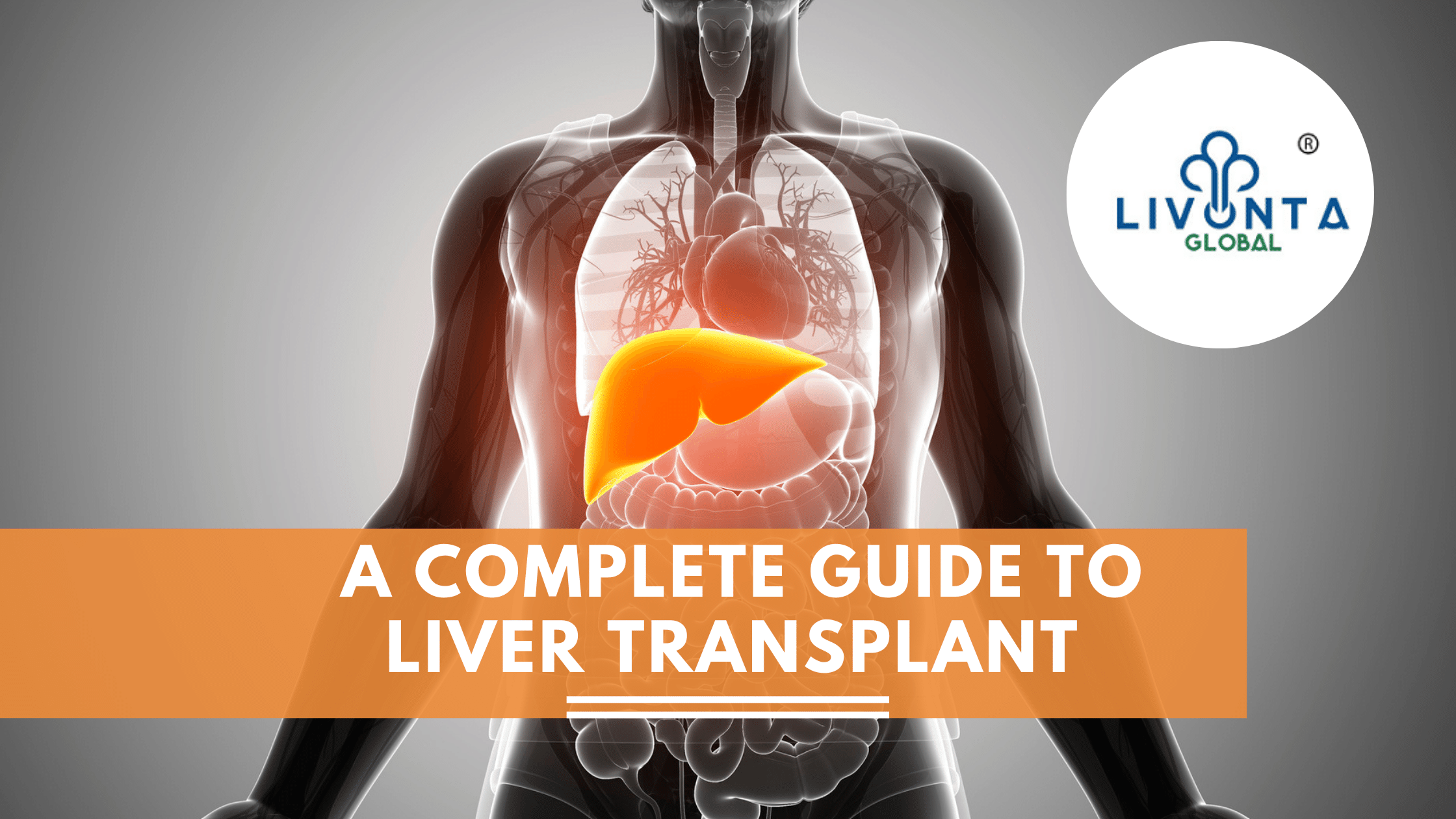 A Complete Guide To Liver Transplant
