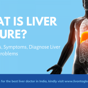 What is Liver Failure? - Treatments, Symptoms, Diagnose Liver Failure or Problems