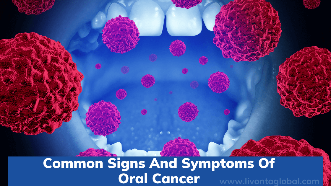 Common Signs And Symptoms Of Oral Cancer