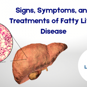 Signs, Symptoms, and Treatments of Fatty Liver Disease