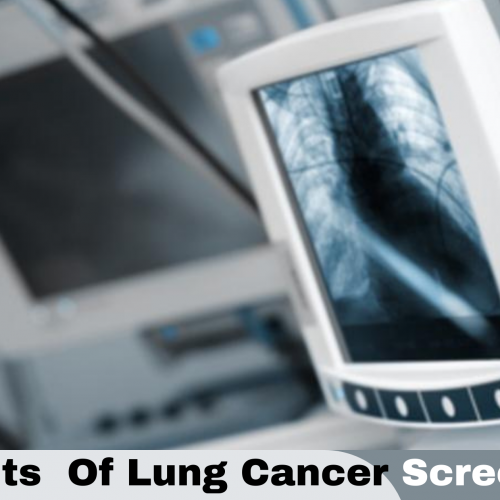 Pre-Determination of Risk, Building a Strong Defence Against Lung Cancer