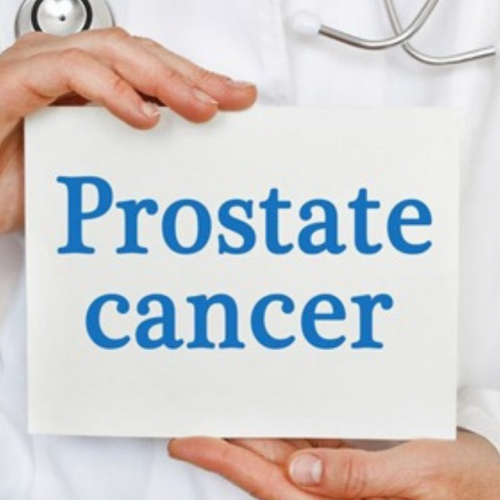 Understanding the Prostate Cancer Stages