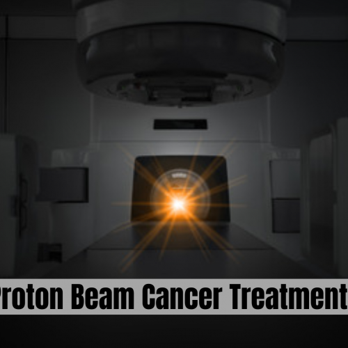 Proton beam Cancer Treatment Saves Life